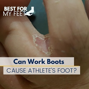 someone suffering from athlete's foot by wearing work boots is showing how the disease looks like
