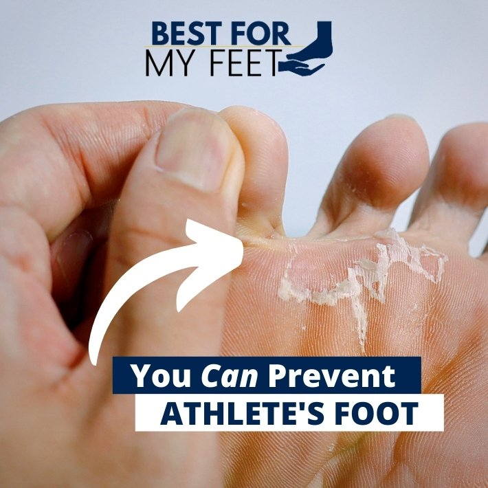 an image with a foot infected with athlete's foot in the section of tips on preventing athlete's foot from developing in your work boot by bestformyfeet.com