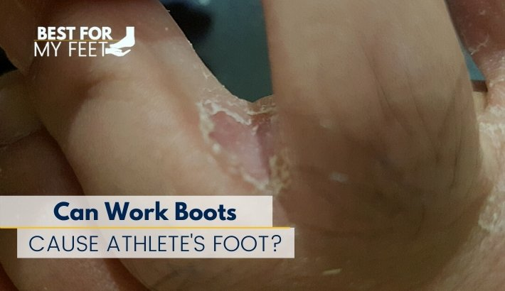 this is my own feet and I'm showing how athlete foot affected my feet and how it development in between my toes